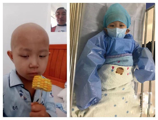 An adopted boy Tian'en who suffered from thalassemia is receiving treatment.